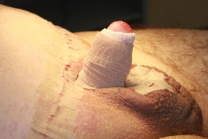 Adult circumcision and fat pubis