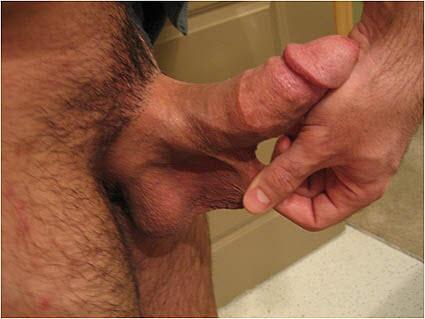 Frenulum of the penis surgery