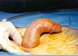 pre-op, marked dorsal (upwards angulation)