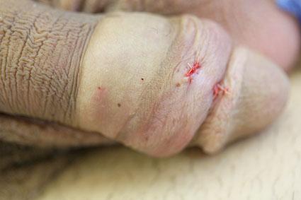 Circumsised penis with skin bridge