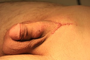 10/4 After repair. Incidental penile warts cauterized gratis as part of the procedure.